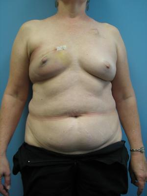 Breast Reconstruction 2432