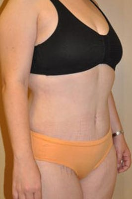 Abdominoplasty 2839