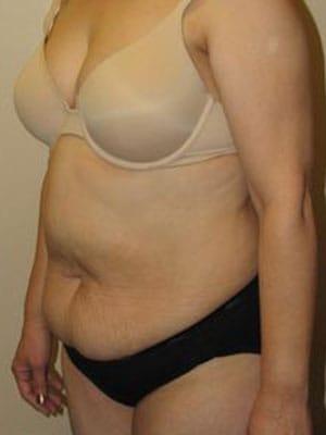 Abdominoplasty 2933