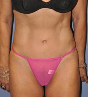 Abdominoplasty 2811