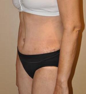 Abdominoplasty 2818