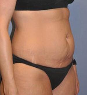 Abdominoplasty 2832