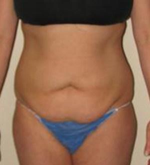 Abdominoplasty 2853