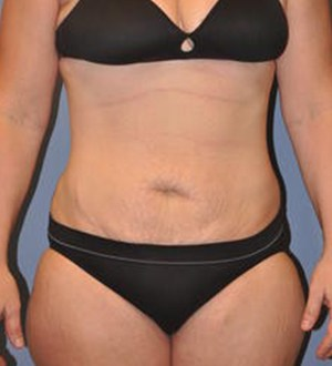 Abdominoplasty 2867