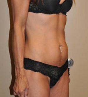 Abdominoplasty 2874