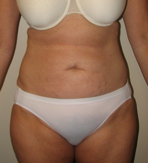 Abdominoplasty 2895