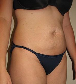 Abdominoplasty 2912