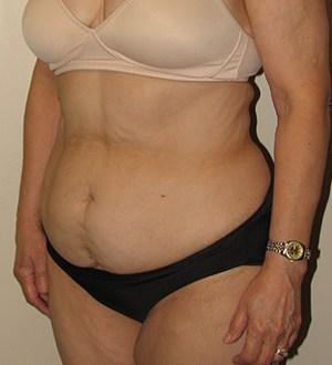 Abdominoplasty 2954