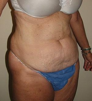 Abdominoplasty 2961