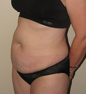 Abdominoplasty 2968