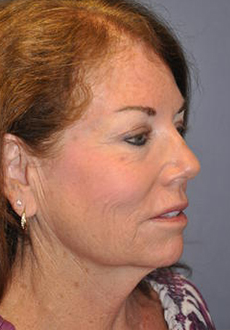 Facelift and Neck Lift 3093