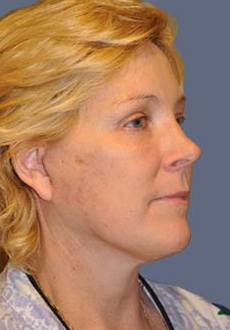 Facelift and Neck Lift 3100