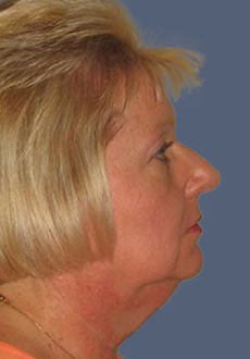 Facelift and Neck Lift 3154