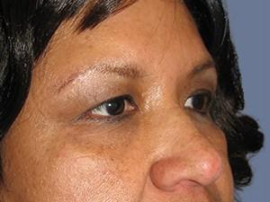 Blepharoplasty 3161