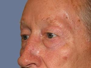Blepharoplasty 3183