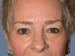 Eyelid Surgery Scottsdale | Blepharoplasty Phoenix, AZ