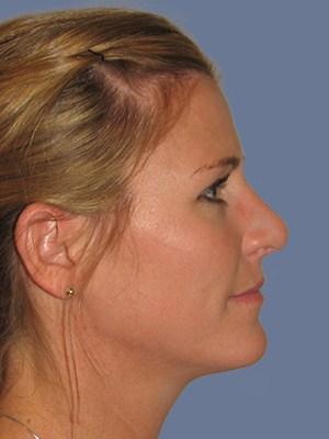 Rhinoplasty 3298