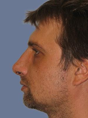 Rhinoplasty 3312
