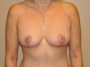 Breast Lift 2693