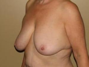 Breast Lift 2707