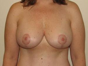 Breast Lift 2721
