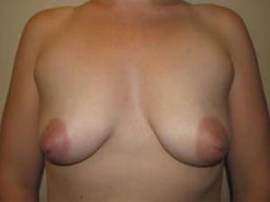 Breast Lift 2790