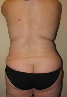 Liposuction 3072