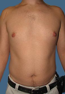 Liposuction 3080