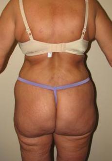 Liposuction 3083