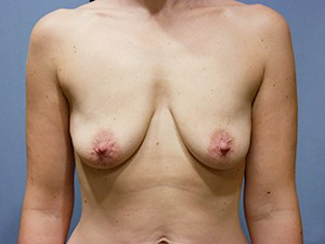 Breast Lift 3378