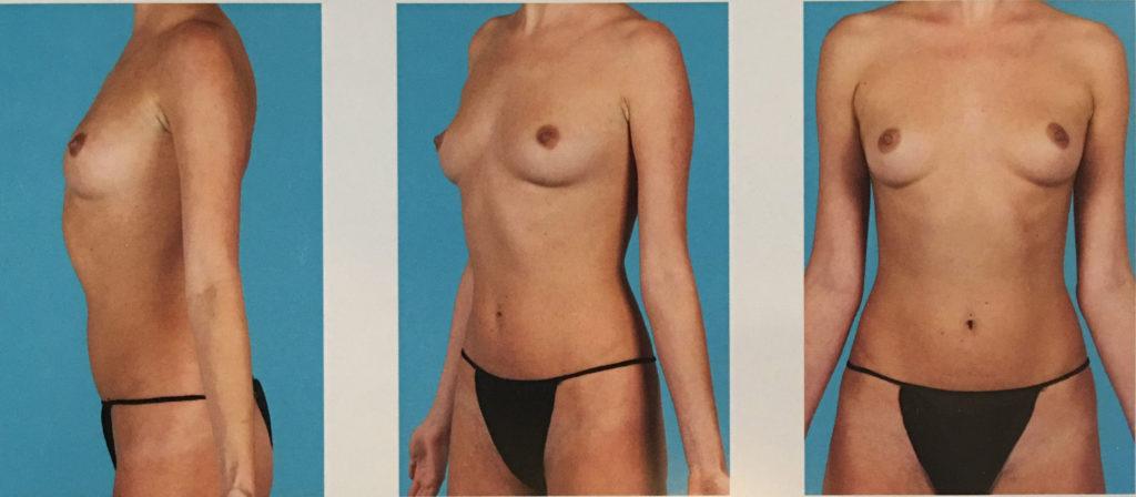 photo - breast body