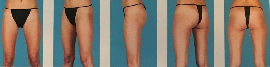 photo - lower body