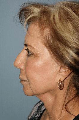 Facelift and Neck Lift 3501