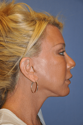 Facelift and Neck Lift 3602
