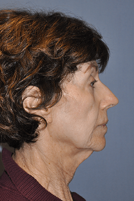 Facelift and Neck Lift 3457