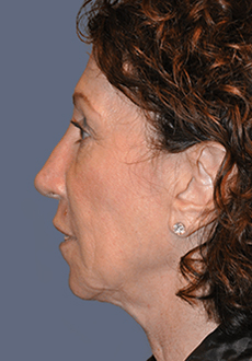 Facelift and Neck Lift 3009