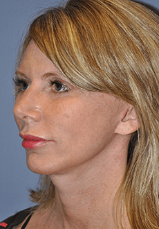 Facelift and Neck Lift 3019