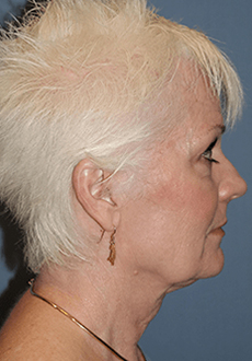 Facelift and Neck Lift 3751