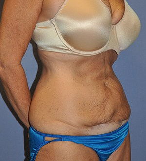 Abdominoplasty 2980