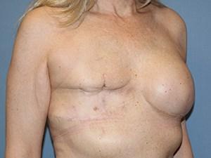 Breast Reconstruction 3340
