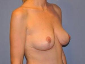 Breast Lift 2700
