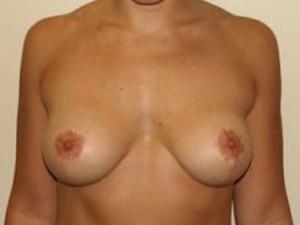Breast Lift 2766