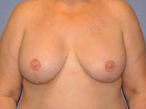 Breast Reconstruction 2383