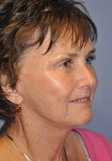 Facelift and Neck Lift 3086