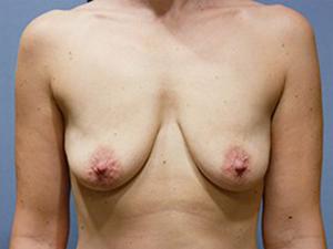 Breast Lift 3378