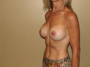 Breast Augmentation 2094
