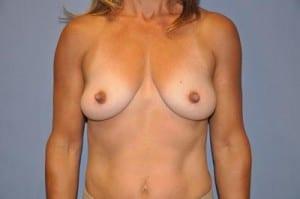 Breast Augmentation 2101