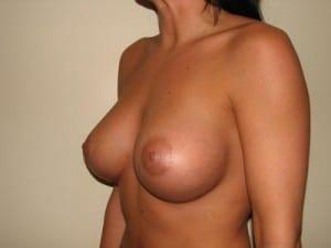 Breast Augmentation 2108