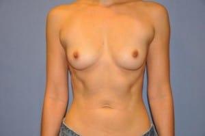Breast Augmentation 2122