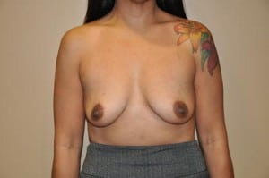 Breast Augmentation 2129